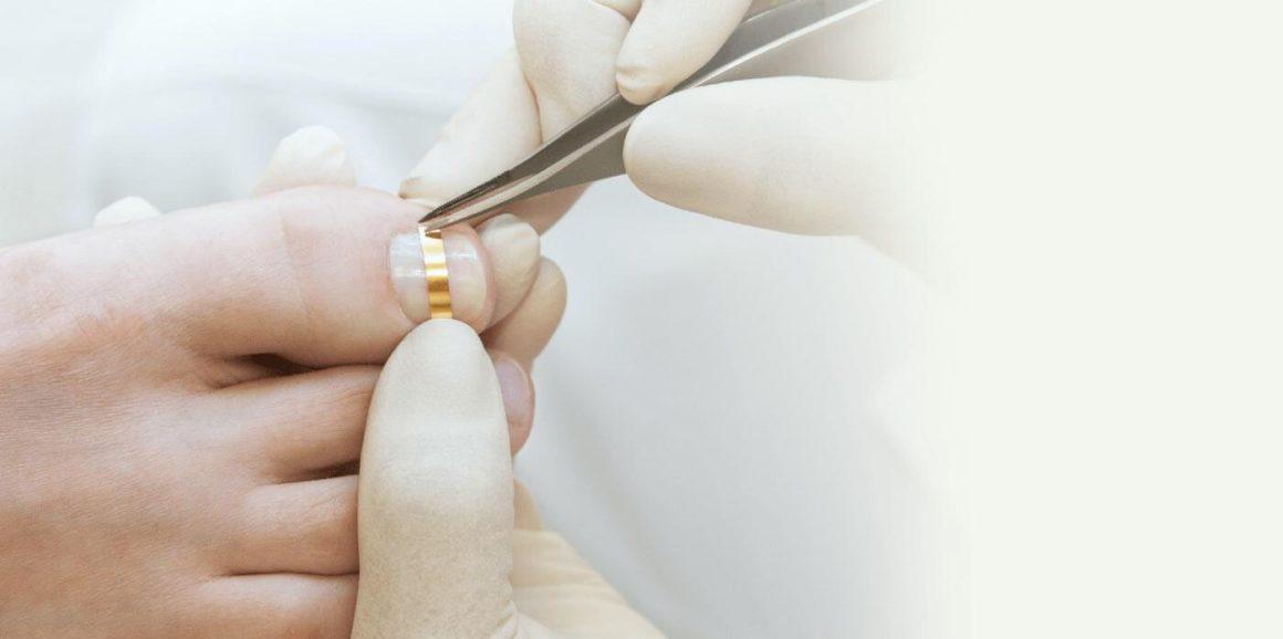 Коррекция вросшего ногтя. Постановка пластин и скоб